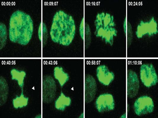 This series of images shows the process of cell division and indicates errors that lead to an imbalance in chromosome number