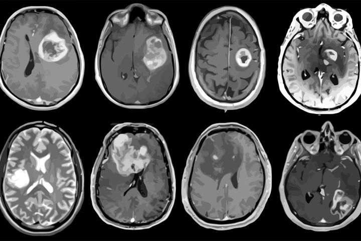 Magnetic resonance imaging of eight patients with glioblastoma.
